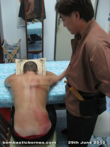 alternative medicine, chinese, gua sha, Kuching, Malaysia, massage, muscular problem, Sarawak, tie da, traditional treament, healing, 刮痧, 铁打,拍打