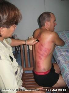 alternative medicine, chinese, gua sha, Kuching, Malaysia, massage, muscular problem, Sarawak, tie da, traditional treament, healing, 刮痧, 铁打,拍打